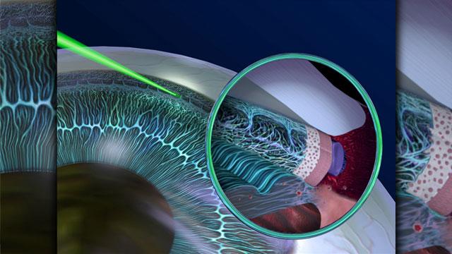 Laserbehandling vid glaukom